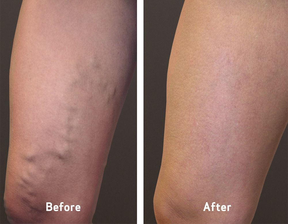 vca-before-and-after-varicose-veins-symptoms-home